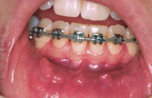 mouth-sores